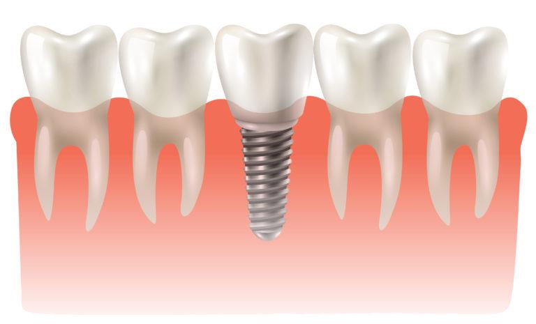 Dental implant model closeup cut away side view educative medical poster vector illustration